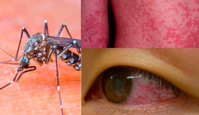 Zika virus, ancora una minaccia dalla zanzara tigre