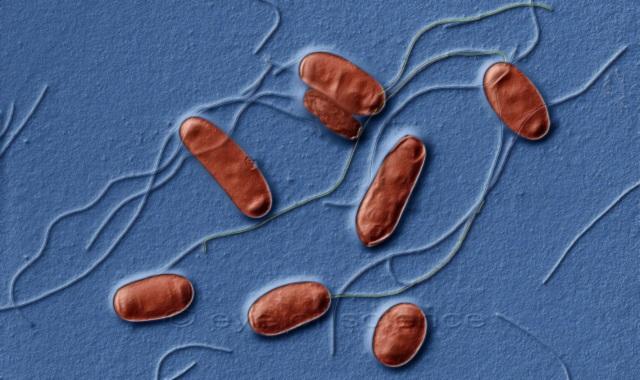 Legionella: attenzione ai condizionatori